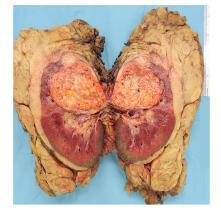 bobrek-pelvis-renalis-tumoru