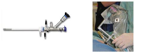 endoskopi