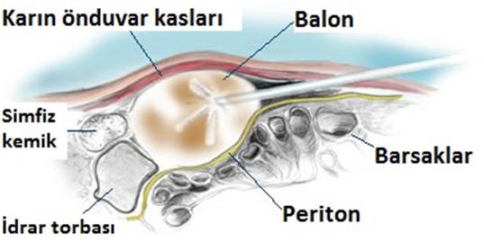 periton zarı