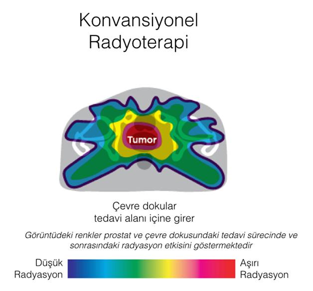tümör